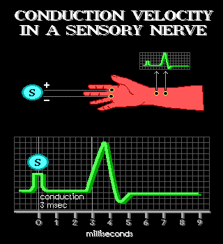 Conduction Velocity in a Sensory Nerve